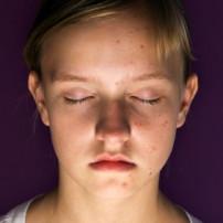 Oorzaak acne