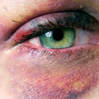 zwelling onder oog na ooglidcorrectie