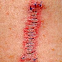 Behandeling melanoom