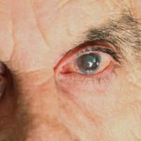 Symptomen uveïtis