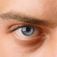 Oorzaken van astigmatisme