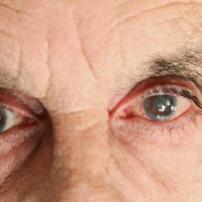 Symptomen van glaucoom