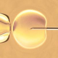 In-vitrofertilisatie of IVF