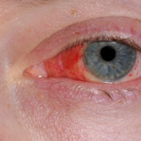 Bindvliesontsteking of conjunctivitis
