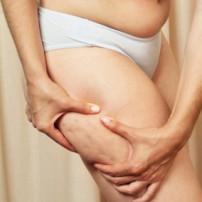 Resultaten liposuctie