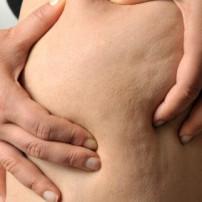 Lipolyse tegen cellulite